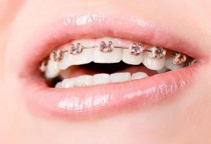 Bagues et orthodontie