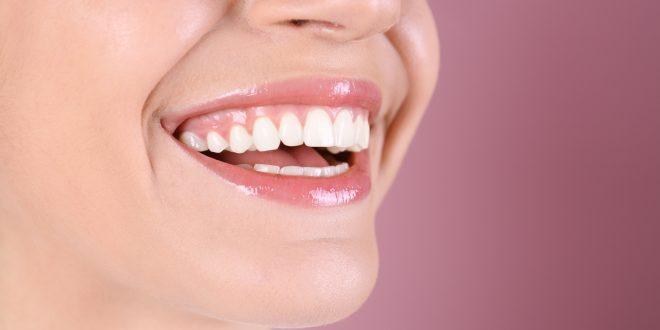 L'implant dentaires : ce qu'il faut savoir avant l'intervention